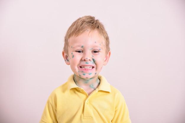 水poの若い幼児。水poの病気の子供。子供の体と顔に水variウイルスまたは水chickenが発疹します。 poと小さな男の子の肖像画。 Premium写真