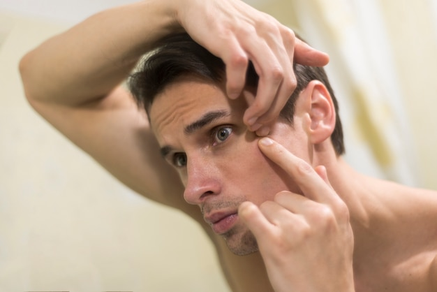 Portrait of man popping a pimple Free Photo