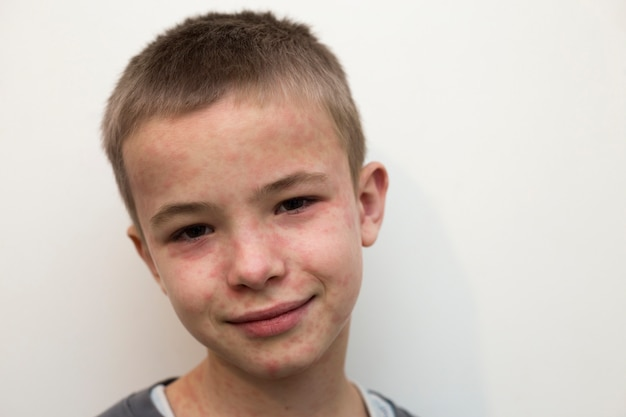 Portrait of sick smiling boy child suffering from measles or chicken pox with bumps all over face Premium Photo