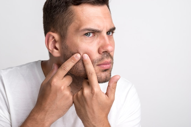 Portrait of young man squeezing pimples on his cheek Free Photo