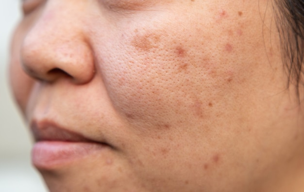Problems facial skin is acne and blemishes. Premium Photo