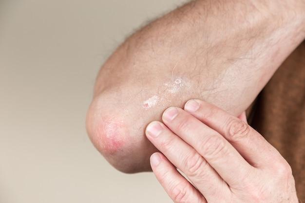 肘の乾癬。皮膚のクローズアップ皮膚炎アレルギー性発疹皮膚炎患者のアトピー性皮膚炎症状皮膚の詳細テクスチャ、真菌概念皮膚科、治療真菌および真菌 Premium写真