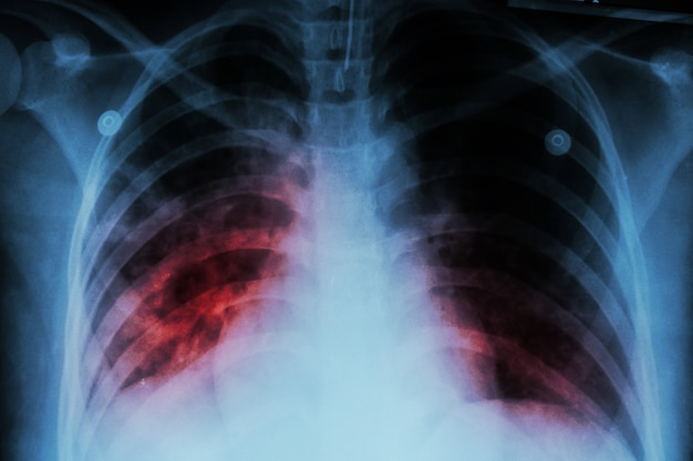 Pulmonary tuberculosis ( tb ) . chest x-ray show alveolar infiltration at both lung Premium Photo
