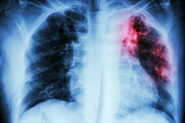Pulmonary tuberculosis Premium Photo