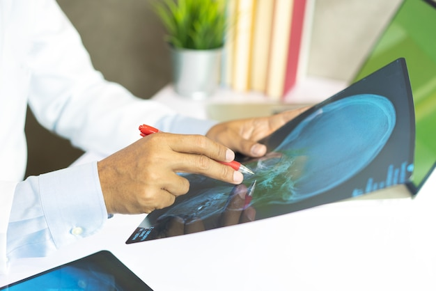 Radiology doctor examining at chest x ray film of patient at hospital Premium Photo
