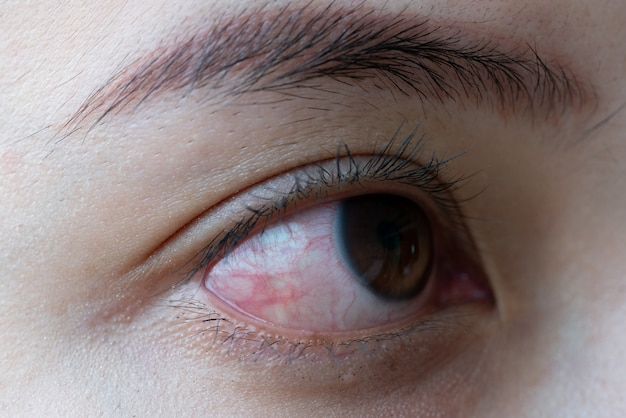 Red eye of woman , conjunctivitis eye or after cry Premium Photo