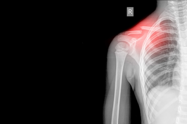 Right shoulder xray ap views showing fracture middle cavicle on red mark, medical image concept. and coppy space. Premium Photo