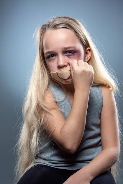 悲しくて怯えた少女は、血を流し、目を傷つけ、口に偽りの笑顔を浮かべていました。 無料写真