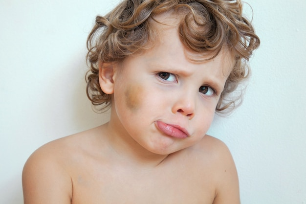 Sad child boy with bruise on cheek and face, abuse concept offended kid. Premium Photo