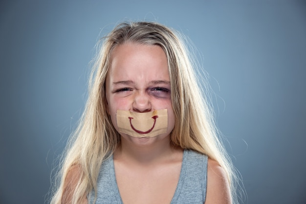 Sad and frightened little girl with bloodshot, bruised eyes and false smile on her mouth. Free Photo