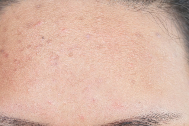 Scar from acne on face Premium Photo