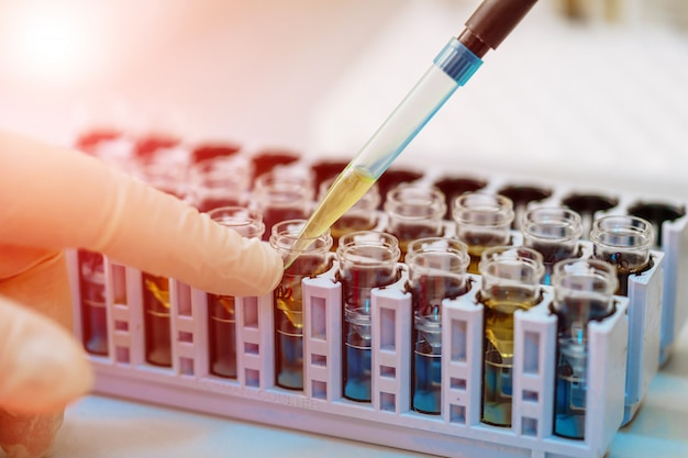 Scientist working with blood sample in laboratory Premium Photo