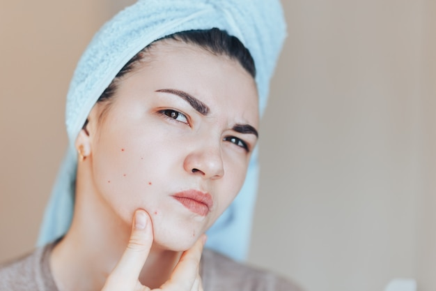 Scowling girl in shock of her acne with a towel on her head. Premium Photo