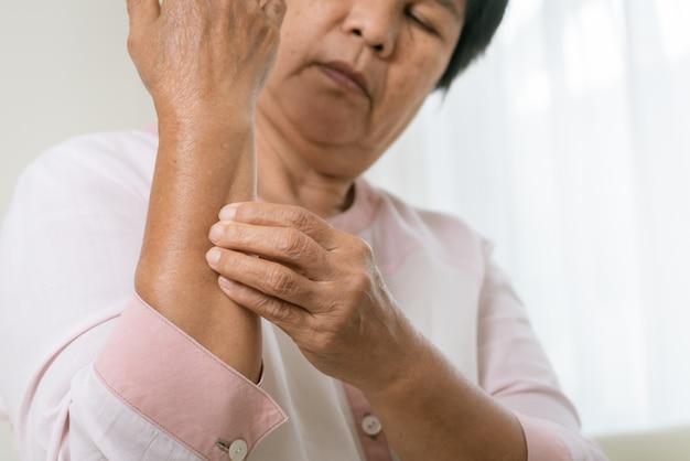 年配の女性はスクラッチ腕湿疹の腕、ヘルスケアおよび医学の概念のかゆみ Premium写真