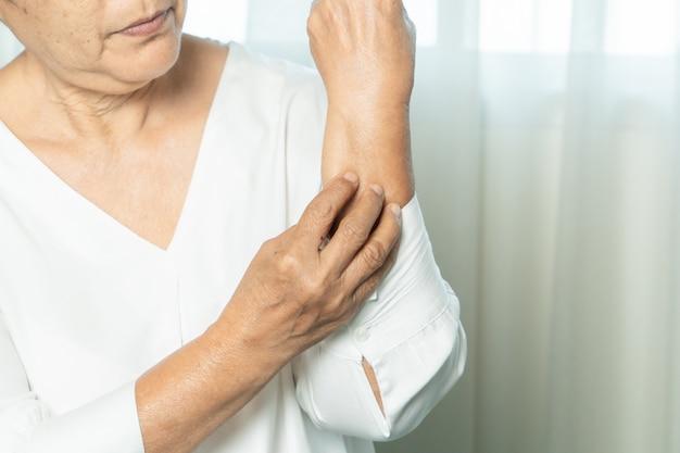年配の女性は、アトピー性皮膚炎の腕、ヘルスケアおよび医学の概念のかゆみを手にスクラッチ Premium写真