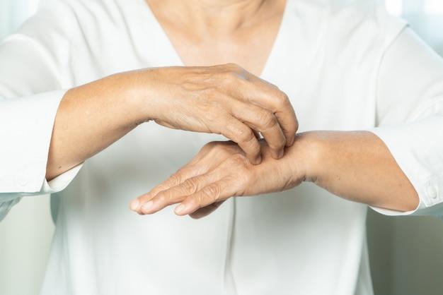 年配の女性が湿疹の手、ヘルスケアおよび医学の概念のかゆみを掻く Premium写真