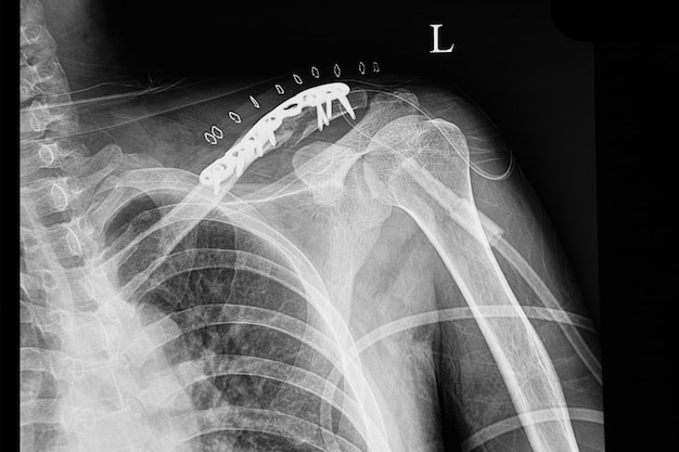 A shouder film xray of a patient with fractured clavicle Premium Photo