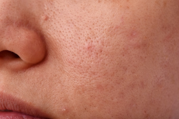 Skin problem with acne diseases, close up woman face with dry lip mouth, scar and oily greasy face, beauty concept. Premium Photo
