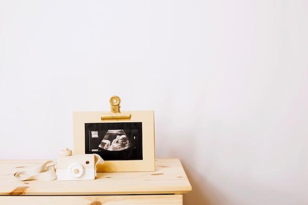 Sonogram image of baby Premium Photo