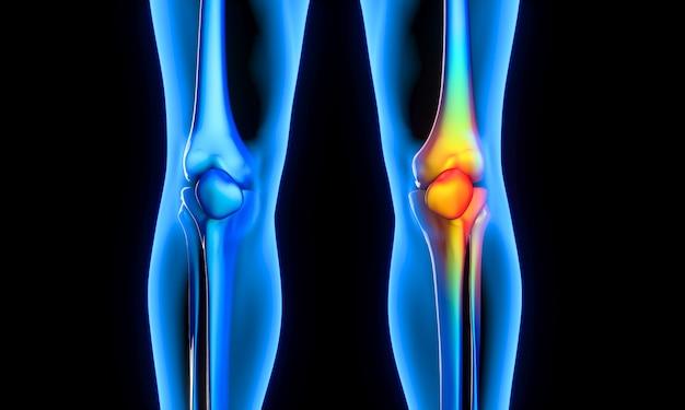 Боль в колене на рентгеновском снимке Premium Фотографии