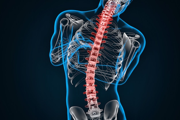 Spondylosis and scoliosis. 3d illustration. contains clipping path Premium Photo
