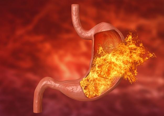 Stomach fire. excessive acidity, indigestion Premium Photo