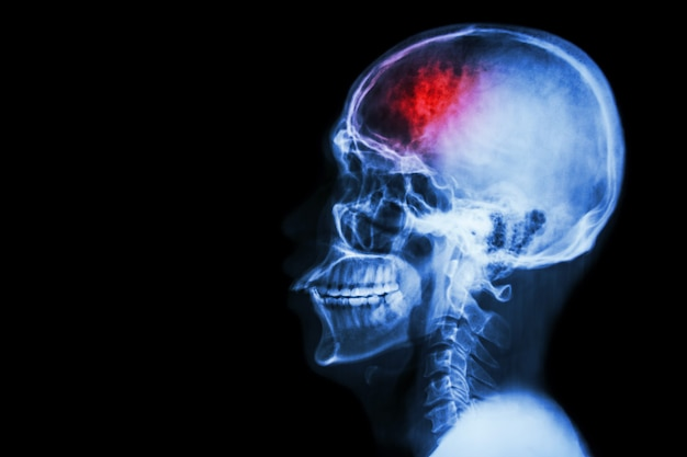 cerebrovascular accident film x ray of humans skull and neck premium photo