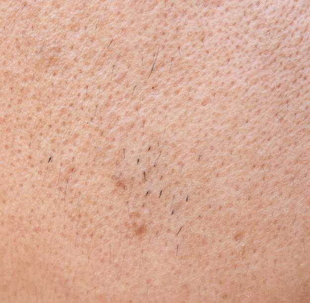 Surface asian man face skin Premium Photo