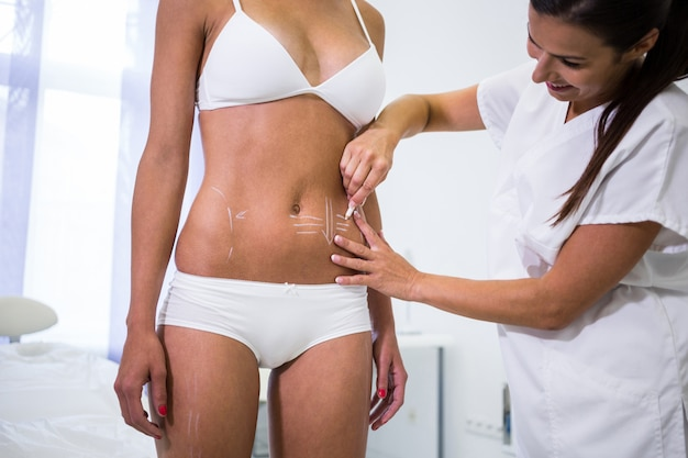 Surgeon drawing lines on womans abdomen for liposuction and cellulite removal Free Photo