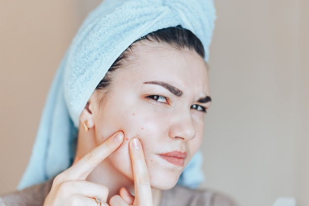 Teenage girl squeezing her pimples, removing pimple from her face. Premium Photo