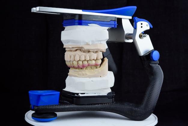 Керамические зубные протезы на распечатанной акриловой модели в артикуляторе в зуботехнической лаборатории Premium Фотографии