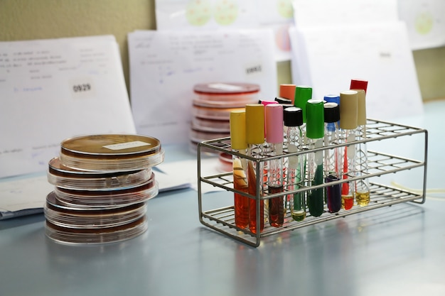 Test tube in the laboratory Premium Photo