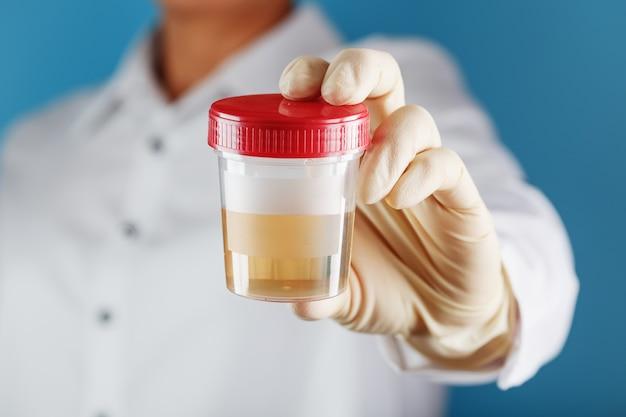 医者は尿のプラスチック缶を持っています Premium写真