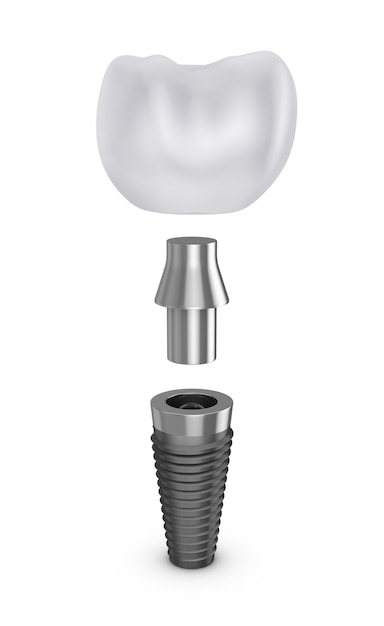 Tooth implant in disassembled form. Premium Photo