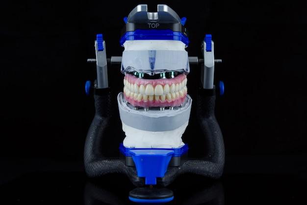 Два стоматологических керамических протеза в стоматологическом артикуляторе Premium Фотографии