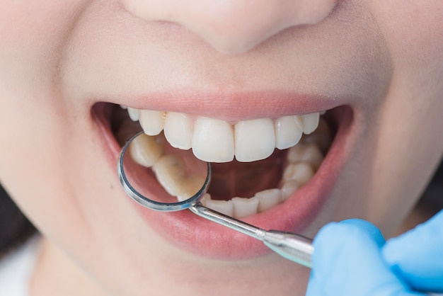 Woman at the dentist Premium Photo