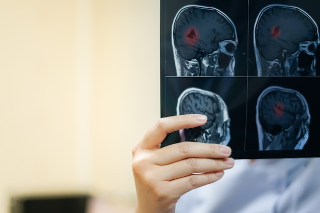Woman hand(radiologist) holding mri brain film to see for diagnostic and report. medical c Premium Photo
