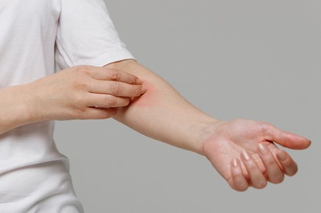 Woman scratching the itch on her hand. dry skin, animal/food allergy, dermatitis Premium Photo