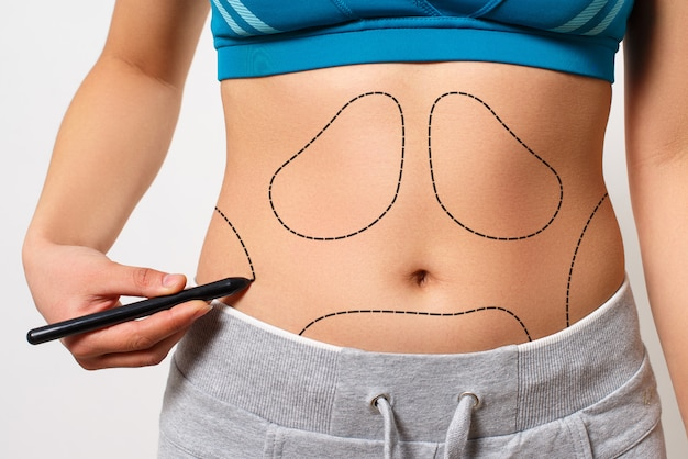 A woman shows a dotted line on her body liposuction zone Premium Photo