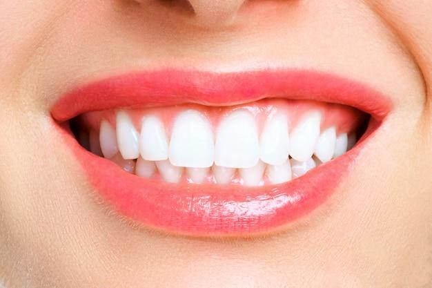 Зубы женщины после отбеливания. Premium Фотографии