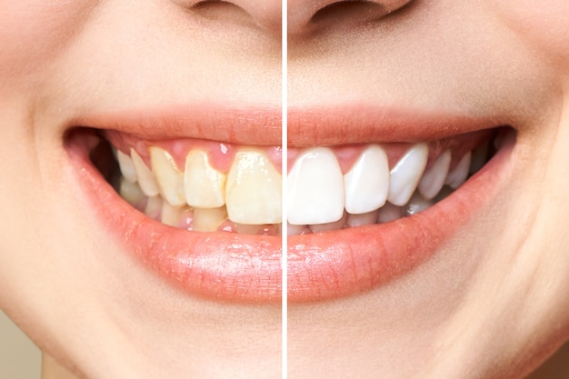 Woman teeth before and after whitening.. image symbolizes, stomatology Premium Photo
