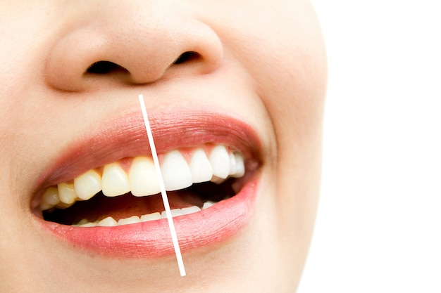 Woman in a whitening treatment Free Photo