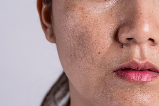 Woman with problematic skin and acne scars. problem skincare concept. Premium Photo