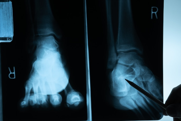 X ray film with doctor's hand to examine Premium Photo