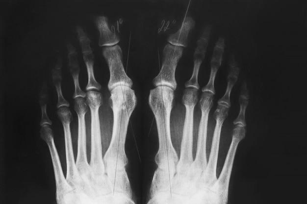 X-ray of the foot, valgus deformity of the toe Premium Photo