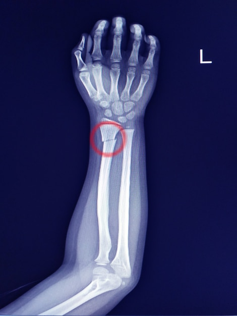 X-ray forearm finding fracture distal shaft of radius.mild sclerosis at fracture line. Premium Photo