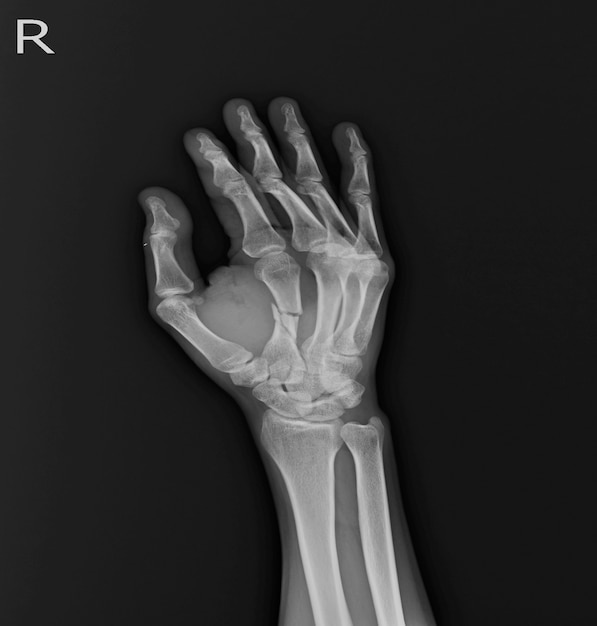 X-ray Hand AP,OBLIQUE:fracture mid shaft Rt.2nd. metacapal bone soft ...