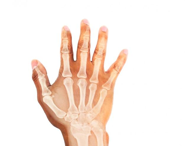 X-ray image of human hand Premium Photo