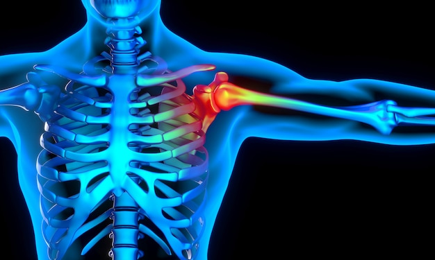 X-ray image of man with shoulder problem Premium Photo