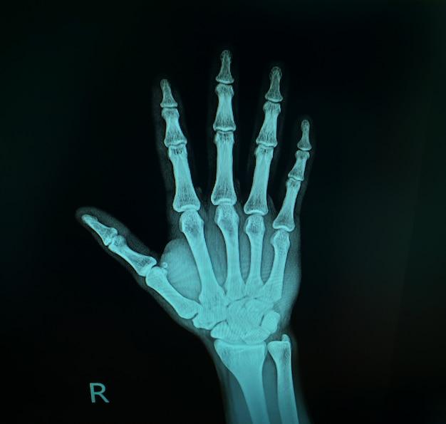 X-ray image show right hand. Premium Photo